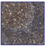 Immunohistochemistry (Formalin/PFA-fixed paraffin-embedded sections) - Anti-C17orf87 antibody (ab121246)