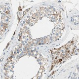 Immunohistochemistry (Formalin/PFA-fixed paraffin-embedded sections) - Anti-LY6G6F antibody (ab121272)