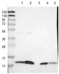 Western blot - Anti-SELK antibody (ab121276)