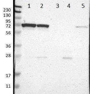 Western blot - Anti-LRRC47 antibody (ab121283)