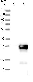 Western blot - Anti-COMMD9 antibody (ab121303)