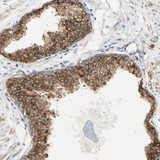 Immunohistochemistry (Formalin/PFA-fixed paraffin-embedded sections) - Anti-ENDOD1 antibody (ab121314)