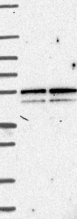 Western blot - Anti-GPCR GPR1 antibody (ab121315)