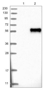 Western blot - Anti-OSTM1 antibody (ab121327)