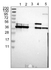 Western blot - Anti-CCDC51  antibody (ab121329)