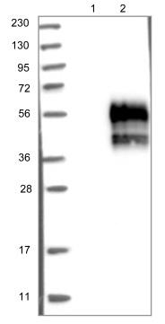 Western blot - Anti-TMIGD2 antibody (ab121333)