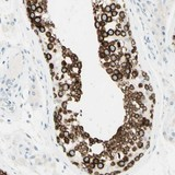 Immunohistochemistry (Formalin/PFA-fixed paraffin-embedded sections) - Anti-FMR1NB antibody (ab121339)
