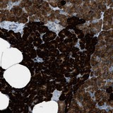 Immunohistochemistry (Formalin/PFA-fixed paraffin-embedded sections) - Anti-HEG1 antibody (ab121343)