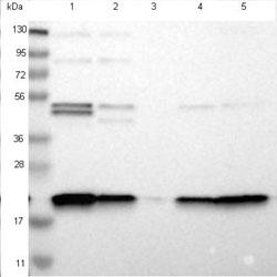 Western blot - Anti-TMEM109 antibody (ab121349)