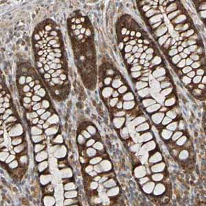 Immunohistochemistry (Formalin/PFA-fixed paraffin-embedded sections)-Anti-TMBIM1 antibody(ab121358)