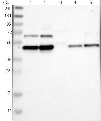 Western blot - Anti-FAM172A antibody (ab121364)