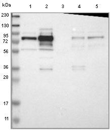 Western blot - Anti-GRAMD1C antibody (ab121365)