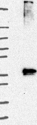 Western blot - Anti-GPCR GPR78 antibody (ab121390)