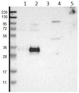 Western blot - Anti-RELL1 antibody (ab121394)