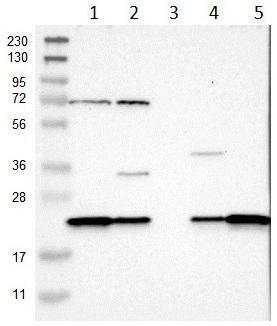 Western blot - Anti-SPCS2 antibody (ab121395)