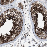 Immunohistochemistry (Formalin/PFA-fixed paraffin-embedded sections) - Anti-TBC1D15 antibody (ab121396)