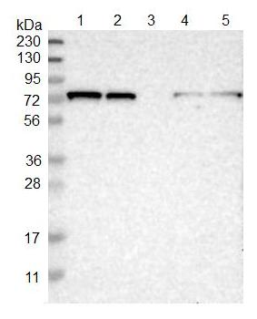 Western blot - Anti-TBC1D15 antibody (ab121396)
