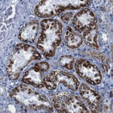 Immunohistochemistry (Formalin/PFA-fixed paraffin-embedded sections) - Anti-SNX19 antibody (ab121401)