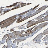 Immunohistochemistry (Formalin/PFA-fixed paraffin-embedded sections) - Anti-C1orf130  antibody (ab121404)