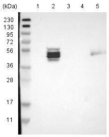 Western blot - Anti-ZDHHC6 antibody (ab121423)