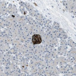 Immunohistochemistry (Formalin/PFA-fixed paraffin-embedded sections) - Anti-FAM187B antibody (ab121445)