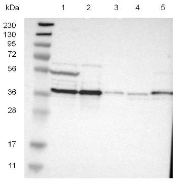 Western blot - Anti-CALHM2 antibody (ab121446)