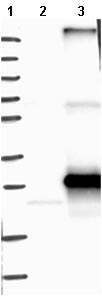 Western blot - Anti-ARL6IP6 antibody (ab121448)