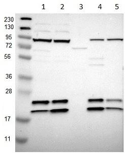 Western blot - Anti-SSR3 antibody (ab121458)