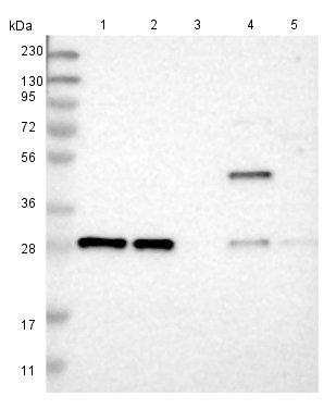 Western blot - Anti-TMEM234 antibody (ab121459)