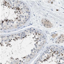 Immunohistochemistry (Formalin/PFA-fixed paraffin-embedded sections) - Anti-AFAF antibody (ab121461)