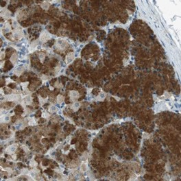 Immunohistochemistry (Formalin/PFA-fixed paraffin-embedded sections) - Anti-CNTNAP3B antibody (ab121479)