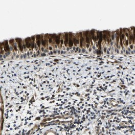 Immunohistochemistry (Formalin/PFA-fixed paraffin-embedded sections) - Anti-C12orf35 antibody (ab121480)