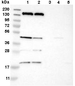 Western blot - Anti-STRC antibody (ab121485)