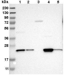 Western blot - Anti-YBEY antibody (ab121504)