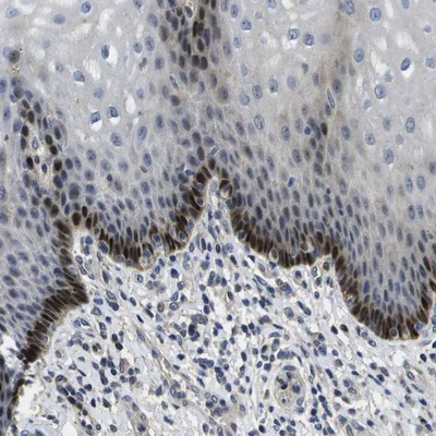 Immunohistochemistry (Formalin/PFA-fixed paraffin-embedded sections) - Anti-SEMA5B antibody (ab121525)