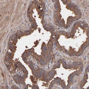 Immunohistochemistry (Formalin/PFA-fixed paraffin-embedded sections) - Anti-C9ORF91 antibody (ab121527)