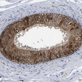 Immunohistochemistry (Formalin/PFA-fixed paraffin-embedded sections) - Anti-FRRS1 antibody (ab121538)