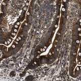 Immunohistochemistry (Formalin/PFA-fixed paraffin-embedded sections) - Anti-LYSMD3 antibody (ab121551)
