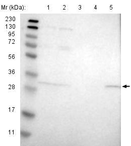 Western blot - Anti-ERGIC1 antibody (ab121574)