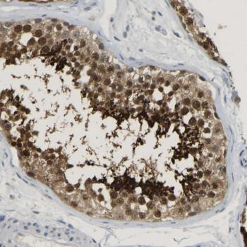 Immunohistochemistry (Formalin/PFA-fixed paraffin-embedded sections) - Anti-TXNDC2 antibody (ab121579)