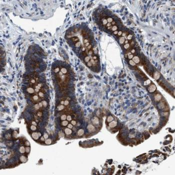 Immunohistochemistry (Formalin/PFA-fixed paraffin-embedded sections) - Anti-ARMC9 antibody (ab121588)