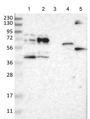 Western blot - Anti-BTN2A1 antibody (ab121593)