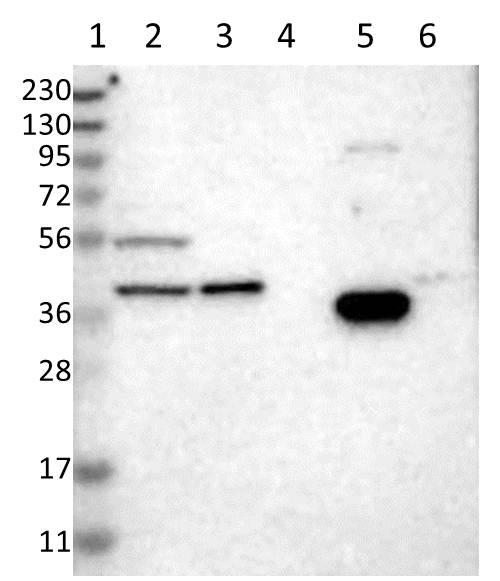 Western blot - Anti-SPATA4 antibody (ab121594)
