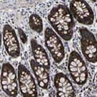 Immunohistochemistry (Formalin/PFA-fixed paraffin-embedded sections) - Anti-PPM1E antibody (ab121598)