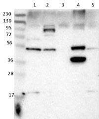 Western blot - Anti-SNX30 antibody (ab121600)
