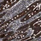 Immunohistochemistry (Formalin/PFA-fixed paraffin-embedded sections) - Anti-ZFAND2A antibody (ab121602)