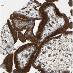 Immunohistochemistry (Formalin/PFA-fixed paraffin-embedded sections) - Anti-PTCD1 antibody (ab121620)