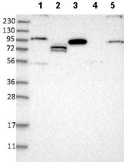 Western blot - Anti-RSBN1L antibody (ab121626)
