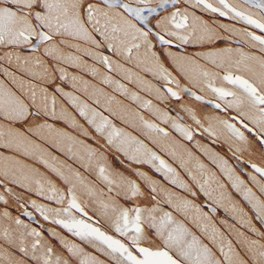 Immunohistochemistry (Formalin/PFA-fixed paraffin-embedded sections) - Anti-MURC antibody (ab121642)