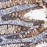 Immunohistochemistry (Formalin/PFA-fixed paraffin-embedded sections) - Anti-TMEM53 antibody (ab121648)